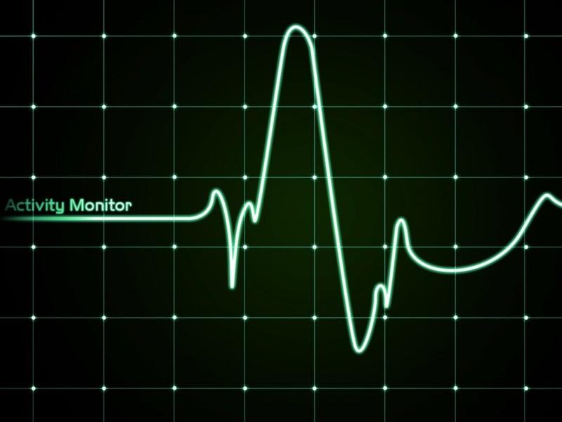 График работы сердца