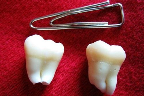 Лечить зубы у стоматолога по соннику. К чему снится крошатся зубы